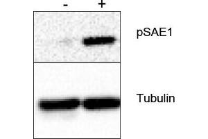 image for anti-SAE1 antibody (SUMO1 Activating Enzyme Subunit 1) (Ser185) (ABIN401467)