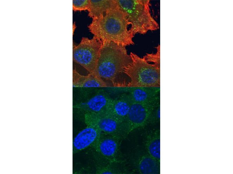 Immunocytochemistry (ICC) image for anti-AXL Receptor tyrosine Kinase (AXL) (pTyr779) antibody (ABIN4900635)