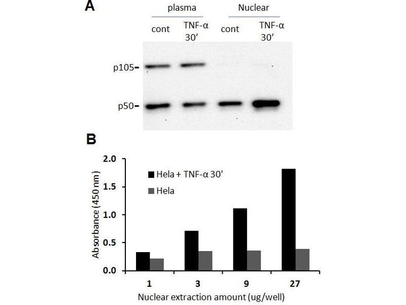Activity Assay (AcA) image for CD40 Molecule, TNF Receptor Superfamily Member 5 (CD40) ELISA Kit (ABIN4889785)