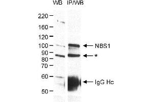 Western Blotting (WB) image for anti-Nibrin antibody (NBN) (ABIN151745)