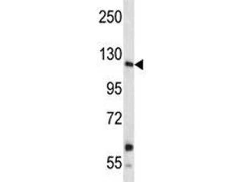 Western Blotting (WB) image for anti-Insulin Receptor-Related Receptor (INSRR) (AA 1228-1255) antibody (ABIN3029734)