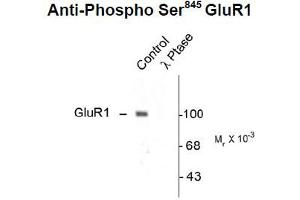 Western Blotting (WB) image for anti-GRIA1 antibody (Glutamate Receptor, Ionotropic, AMPA 1) (pSer845) (ABIN2441132)
