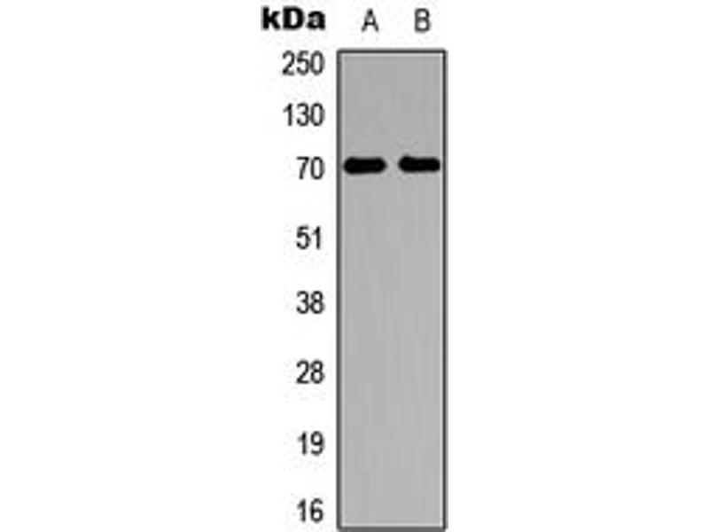 Western Blotting (WB) image for anti-Ribosomal Protein S6 Kinase, 70kDa, Polypeptide 1 (RPS6KB1) (Center) antibody (ABIN2707004)