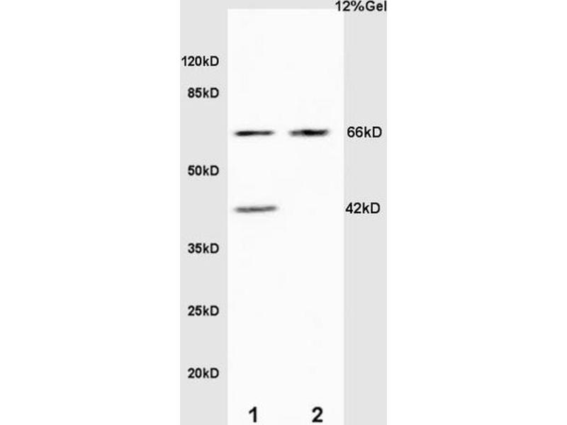 SDS-PAGE (SDS) image for anti-Elastin (ELN) (AA 750-786) antibody (ABIN734003)