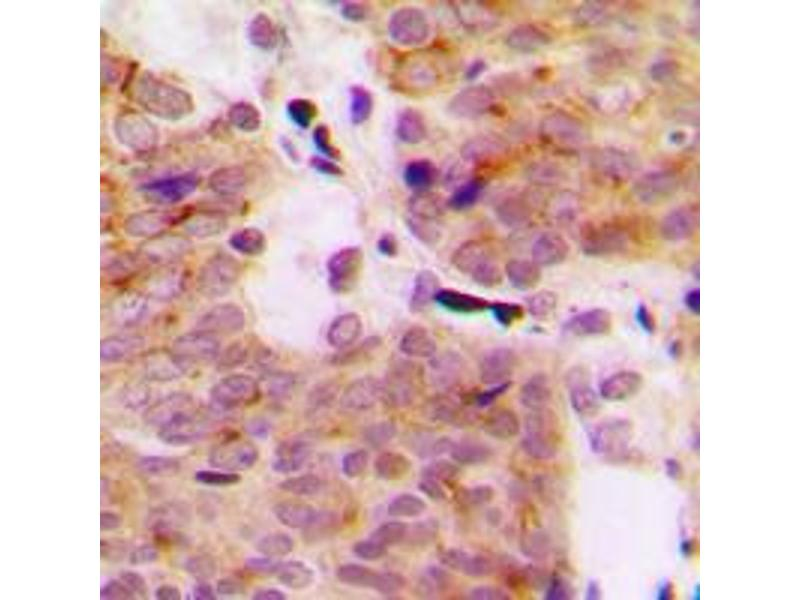 Immunohistochemistry (IHC) image for anti-Mitogen-Activated Protein Kinase Kinase Kinase 1 (MAP3K1) (C-Term), (pSer1402) antibody (ABIN2704979)