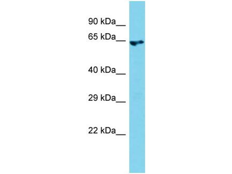 Western Blotting (WB) image for anti-rho Guanine Nucleotide Exchange Factor (GEF) 4 (ARHGEF4) (N-Term) antibody (ABIN2787993)