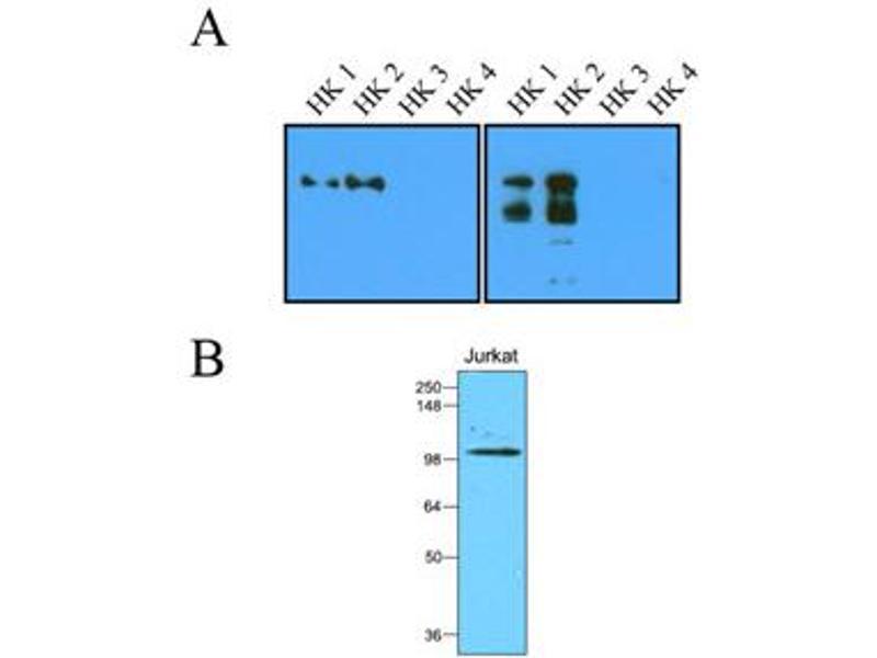 Western Blotting (WB) image for anti-Hexokinase 2 (HK2) (AA 1-917), (N-Term) antibody (ABIN263918)