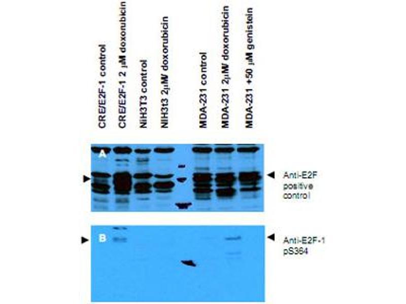 Western Blotting (WB) image for anti-E2F Transcription Factor 1 (E2F1) (pSer364) antibody (ABIN538143)