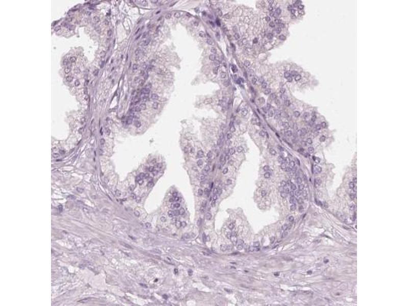 Immunohistochemistry (Paraffin-embedded Sections) (IHC (p)) image for anti-Preferentially Expressed Antigen in Melanoma (PRAME) antibody (ABIN4347184)