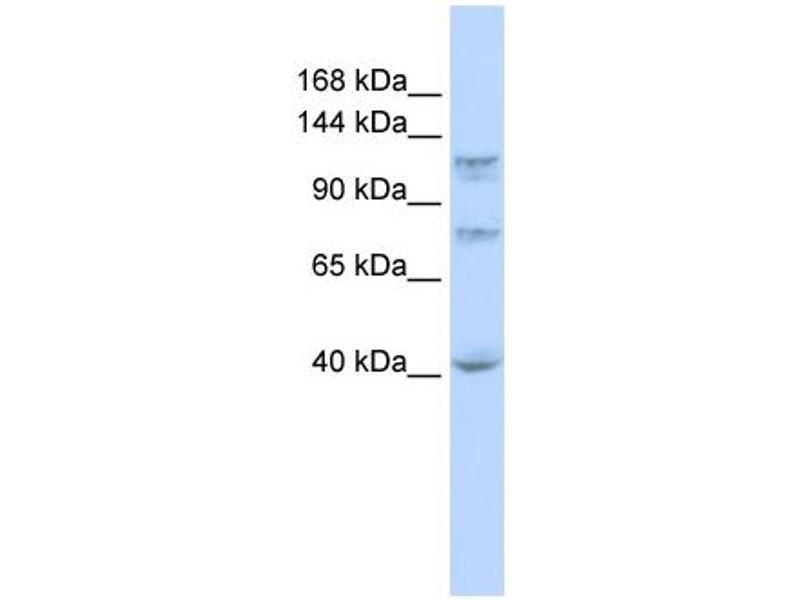Western Blotting (WB) image for anti-DEAH (Asp-Glu-Ala-His) Box Polypeptide 30 (DHX30) (N-Term) antibody (ABIN2775228)