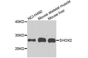 Image no. 1 for anti-Short Stature Homeobox 2 (SHOX2) antibody (ABIN6147751)