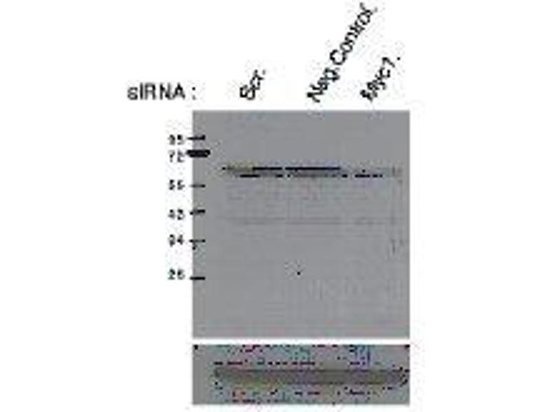 Western Blotting (WB) image for anti-C-MYC antibody (V-Myc Myelocytomatosis Viral Oncogene Homolog (Avian)) (pSer62) (ABIN3201011)