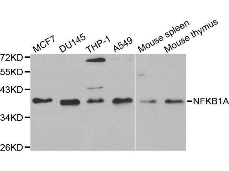 Western Blotting (WB) image for anti-Nuclear Factor of kappa Light Polypeptide Gene Enhancer in B-Cells Inhibitor, alpha (NFKBIA) antibody (ABIN3021668)