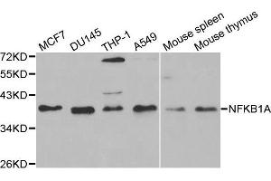 Western Blotting (WB) image for anti-Nuclear Factor of kappa Light Polypeptide Gene Enhancer in B-Cells Inhibitor, alpha (NFKBIA) antibody (ABIN3021668)