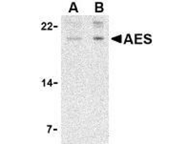 Western Blotting (WB) image for anti-AES antibody (Amino-terminal Enhancer of Split) (N-Term) (ABIN499227)