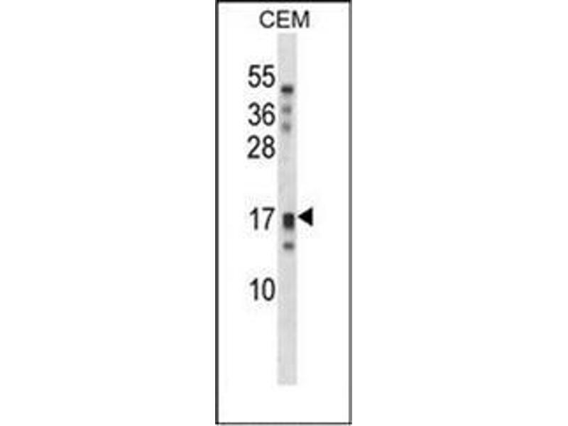 Western Blotting (WB) image for anti-Kallikrein-Related Peptidase 15 (KLK15) (AA 79-106), (Middle Region) antibody (ABIN953102)