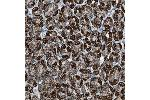 Immunohistochemistry (Paraffin-embedded Sections) (IHC (p)) image for anti-Malate Dehydrogenase 2, NAD (Mitochondrial) (MDH2) antibody (ABIN4333314)