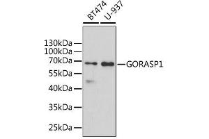 Image no. 2 for anti-Golgi Reassembly Stacking Protein 1, 65kDa (GORASP1) antibody (ABIN6141279)