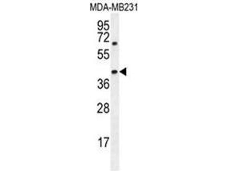 Western Blotting (WB) image for anti-AMACR antibody (alpha-Methylacyl-CoA Racemase) (AA 330-359) (ABIN950388)