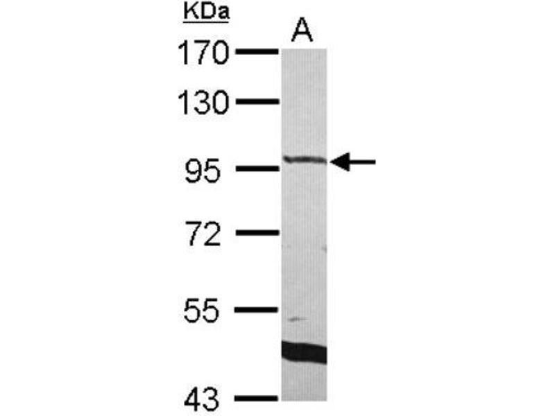 Western Blotting (WB) image for anti-RAS p21 Protein Activator 3 (RASA3) (C-Term) 抗体 (ABIN4349398)