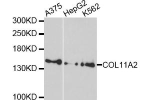 Western Blotting (WB) image for anti-Collagen, Type XI, alpha 2 (COL11A2) antibody (ABIN5964617)