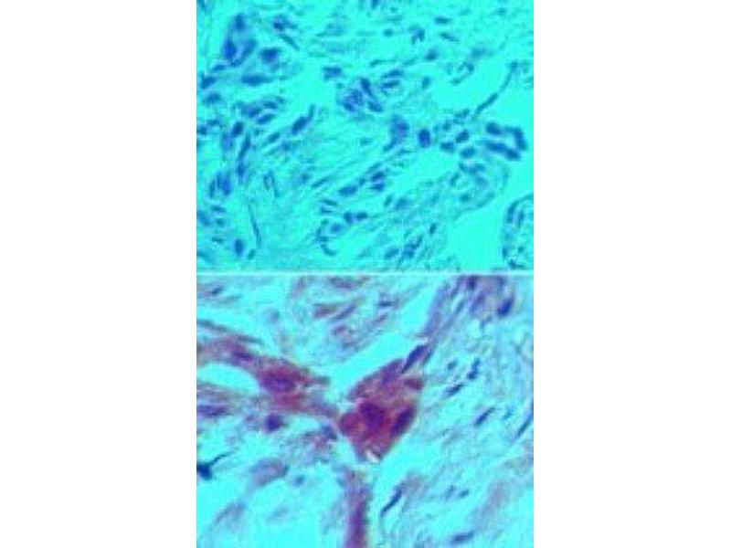 Immunohistochemistry (Paraffin-embedded Sections) (IHC (p)) image for anti-rho GDP Dissociation Inhibitor (GDI) beta (ARHGDIB) antibody (ABIN252665)