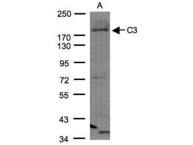 Western Blotting (WB) image for anti-Complement Component 3 (C3) (C-Term) antibody (ABIN442056)