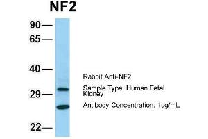 Image no. 2 for anti-Neurofibromin 2 (NF2) (C-Term) antibody (ABIN2789402)