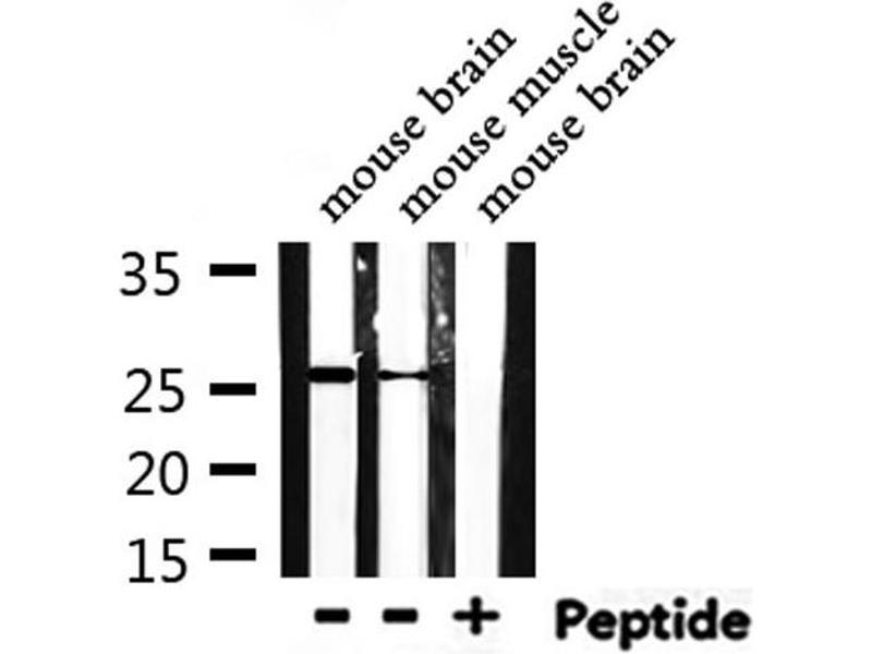 Image no. 5 for anti-TIMP Metallopeptidase Inhibitor 4 (TIMP4) antibody (ABIN6269430)