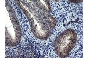 Image no. 4 for anti-Mitochondrial Ribosomal Protein S27 (MRPS27) (AA 151-414) antibody (ABIN1490965)