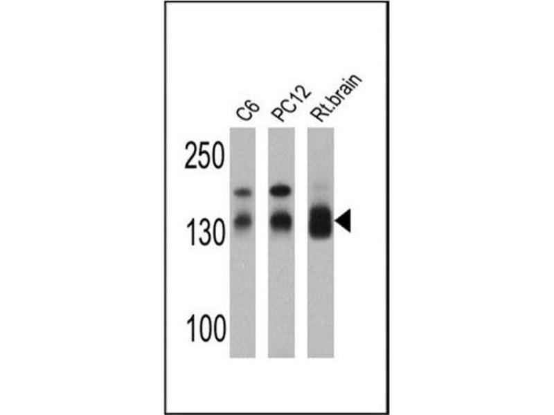 Western Blotting (WB) image for anti-Discs, Large Homolog 1 (Drosophila) (DLG1) antibody (ABIN269417)