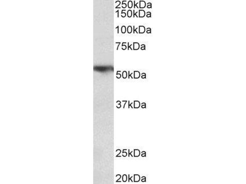 Western Blotting (WB) image for anti-TNFRSF1A antibody (Tumor Necrosis Factor Receptor Superfamily, Member 1A) (Internal Region) (ABIN2560469)