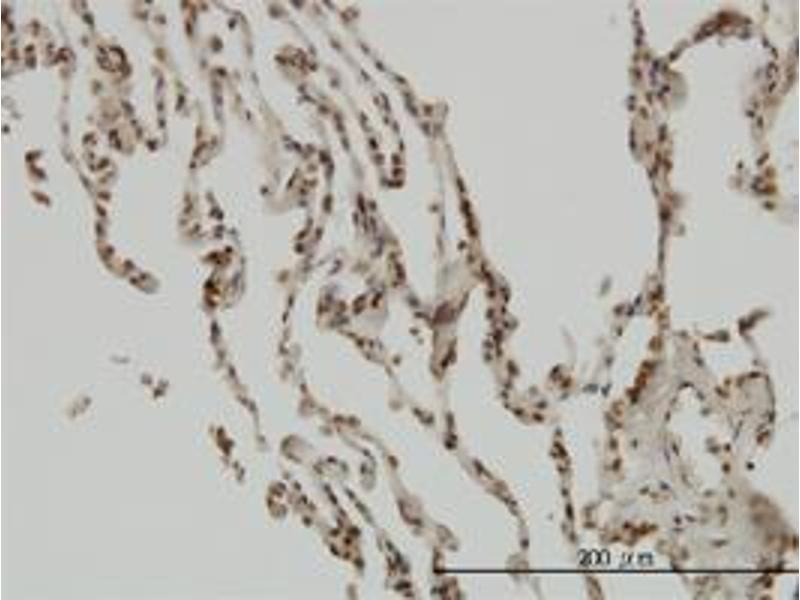 Immunohistochemistry (Paraffin-embedded Sections) (IHC (p)) image for anti-Nuclear Factor of kappa Light Polypeptide Gene Enhancer in B-Cells Inhibitor, beta (NFKBIB) (AA 56-145) antibody (ABIN393462)