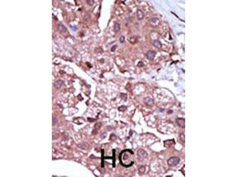 Immunohistochemistry (IHC) image for anti-ACVRL1 antibody (Activin A Receptor Type II-Like 1) (AA 474-503) (ABIN392242)
