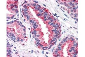 Immunohistochemistry (Paraffin-embedded Sections) (IHC (p)) image for anti-FZD6 antibody (Frizzled Family Receptor 6) (N-Term) (ABIN271086)