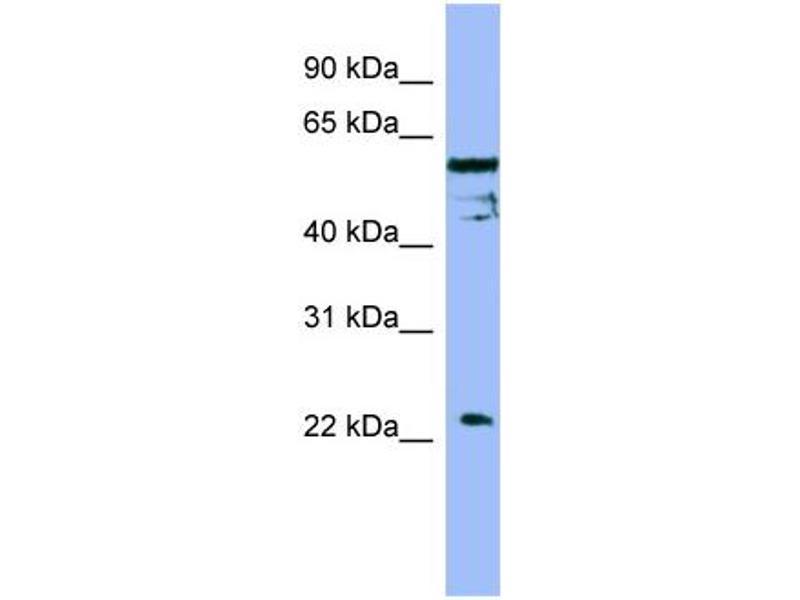 Western Blotting (WB) image for anti-FAIM antibody (Fas Apoptotic Inhibitory Molecule) (Middle Region) (ABIN487272)