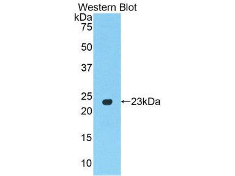 Western Blotting (WB) image for anti-Peroxisome Proliferator-Activated Receptor gamma (PPARG) (AA 311-493) antibody (ABIN1860283)
