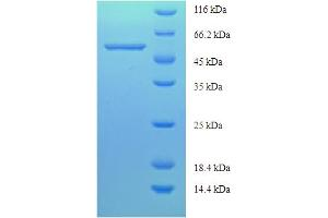 Image no. 1 for Cystathionine-beta-Synthase (CBS) (AA 1-413), (partial) protein (His-SUMO Tag) (ABIN4976253)