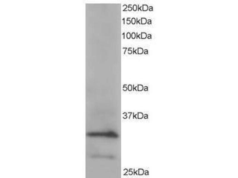 image for anti-ARPC2 antibody (Actin Related Protein 2/3 Complex, Subunit 2, 34kDa) (C-Term) (ABIN782909)