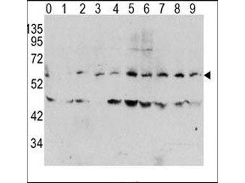 Western Blotting (WB) image for anti-V-Myc Myelocytomatosis Viral Oncogene Homolog (Avian) (MYC) (pThr58) antibody (ABIN3029537)