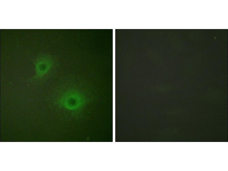 Immunofluorescence (IF) image for anti-EPH Receptor A2 antibody (EPHA2) (Tyr594) (ABIN2164637)