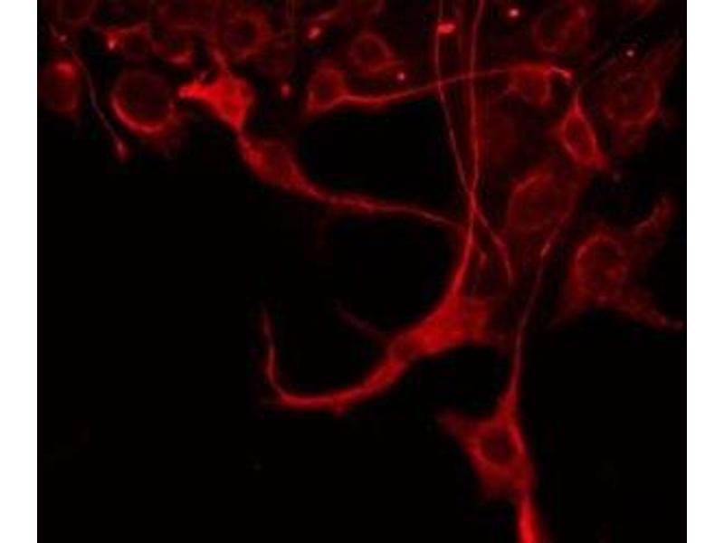 Immunofluorescence (fixed cells) (IF/ICC) image for anti-Serpin Peptidase Inhibitor, Clade G (C1 Inhibitor), Member 1 (SERPING1) antibody (ABIN6265014)