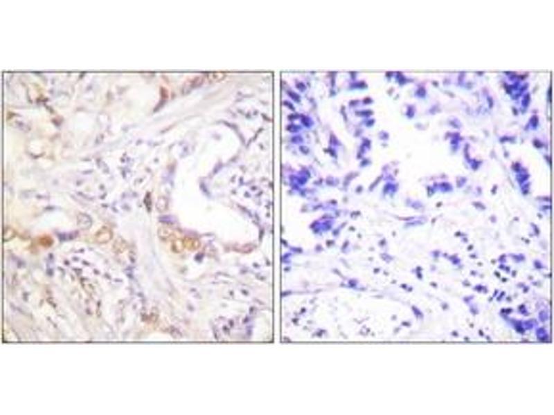 Immunohistochemistry (IHC) image for anti-Protein Inhibitor of Activated STAT, 3 (PIAS3) (AA 10-59) antibody (ABIN1533434)