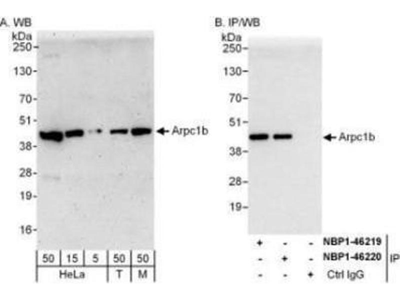Western Blotting (WB) image for anti-Actin Related Protein 2/3 Complex, Subunit 1B, 41kDa (ARPC1B) (AA 272-322) antibody (ABIN4278116)
