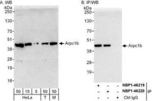 Western Blotting (WB) image for anti-ARPC1B antibody (Actin Related Protein 2/3 Complex, Subunit 1B, 41kDa) (AA 272-322) (ABIN4278116)