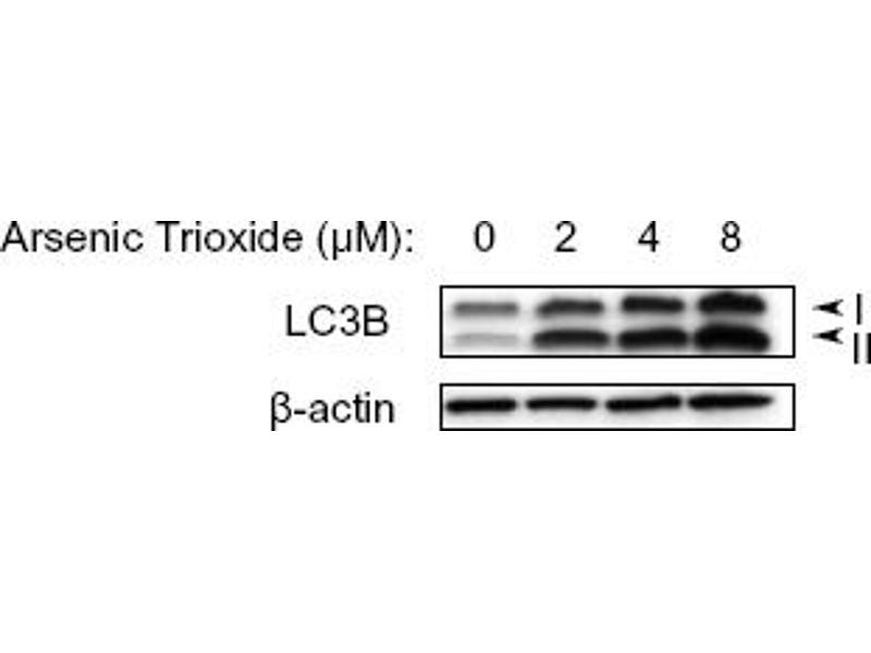 Western Blotting (WB) image for anti-Microtubule-Associated Protein 1 Light Chain 3 beta (MAP1LC3B) (N-Term) antibody (ABIN153145)