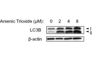 Western Blotting (WB) image for anti-Microtubule-Associated Protein 1 Light Chain 3 beta (MAP1LC3B) (N-Term) antibody (ABIN153145)