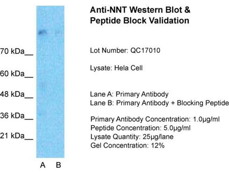 Western Blotting (WB) image for anti-Nicotinamide Nucleotide Transhydrogenase (NNT) (N-Term) antibody (ABIN502788)