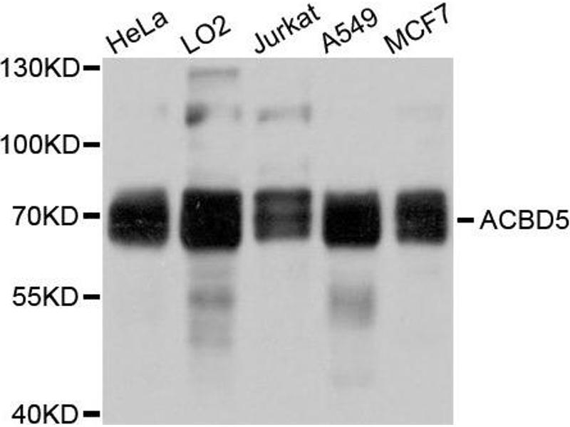 Western Blotting (WB) image for anti-Acyl-CoA Binding Domain Containing 5 (ACBD5) antibody (ABIN4902822)