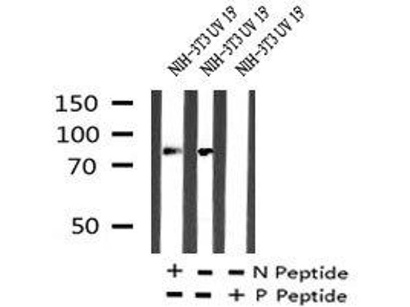 Image no. 3 for anti-Protein Kinase C, alpha (PKCa) (pTyr195) antibody (ABIN6269893)